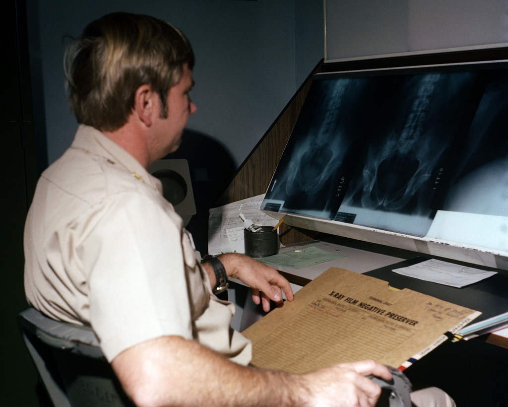 Major Jerry R. Wright, a radiologist, views X-rays at Darnall Army Hospital