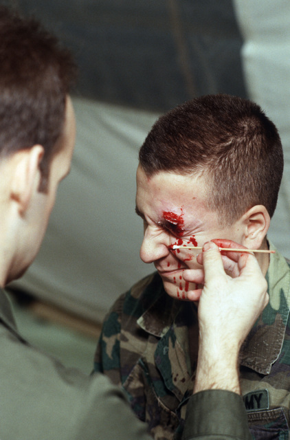 Moulage specialists create a bloody eye injury on the brow of Private First Class (PFC) John Lucas during Exercise BRIM FROST'87
