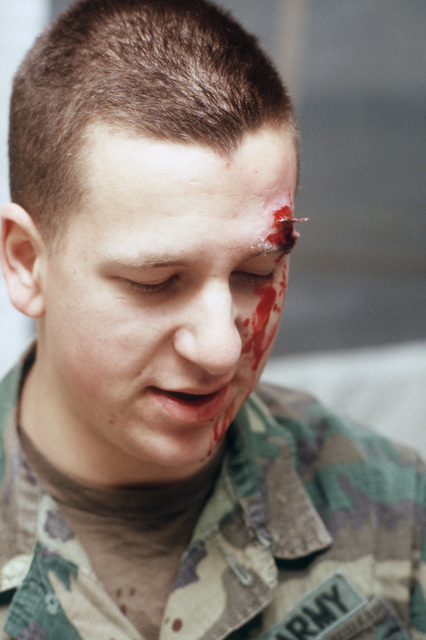 Private First Class (PFC) John Lucas awaits treatment for a simulated eye injury during Exercise BRIM FROST'87