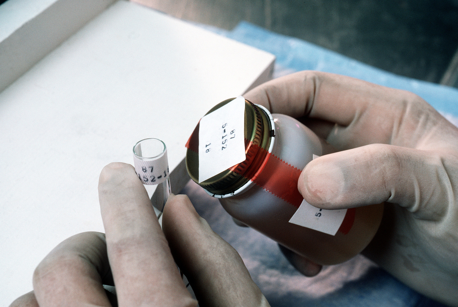 A medical laboratory technician prepares to pour a urine