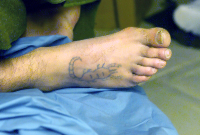 An Iraqi, Enemy Prisoner of War (EPW), with a tattoo of a scorpion on his right foot, is treated for injuries at the US Navy (USN) Fleet Hospital, located at the Logistics Support Area (LSA), Camp Viper, Iraq, during Operation IRAQI FREEDOM
