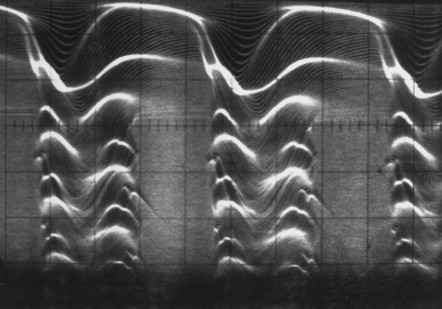 Dual-axis time display: 0.5 m-sec/cm horizontal; 6 cm vertical for 1.5 m-sec. Photograph taken August 19, 1964. Bevatron-3615