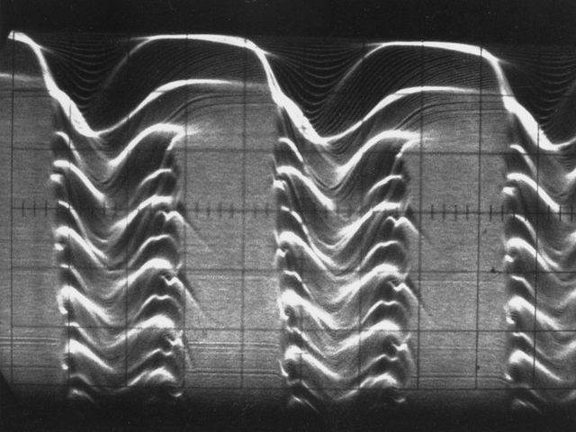 Dual-axis time display showing beam loss: 0.5 m-sec/cm horizontal; 6 cm vertical for 2 m-sec. Photograph taken August 19, 1964. Bevatron-3616